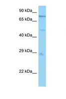 PSMC1 Antibody - PSMC1 antibody Western blot of Mouse Heart lysate. Antibody concentration 1 ug/ml.  This image was taken for the unconjugated form of this product. Other forms have not been tested.