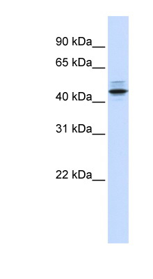 PSMC3 antibody LS-C112167 Western blot of Fetal Lung lysate.  This image was taken for the unconjugated form of this product. Other forms have not been tested.