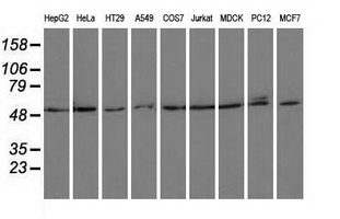 Western blot of extracts (35 ug) from 9 different cell lines by using anti-PSMC3 monoclonal antibody.