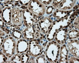 IHC of paraffin-embedded Kidney tissue using anti-PSMC3 mouse monoclonal antibody. (Dilution 1:50).