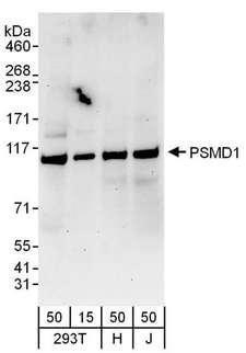 PSMD1 Antibody - Detection of Human PSMD1 by Western Blot. Samples: Whole cell lysate from 293T (15 and 50 ug), HeLa (H; 50 ug), and Jurkat (J; 50 ug) cells. Antibodies: Affinity purified rabbit anti-PSMD1 antibody used for WB at 0.1 ug/ml. Detection: Chemiluminescence with an exposure time of 3 minutes.