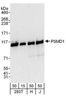 PSMD1 Antibody - Detection of Human PSMD1 by Western Blot. Samples: Whole cell lysate from 293T (15 and 50 ug), HeLa (H; 50 ug), and Jurkat (J; 50 ug) cells. Antibodies: Affinity purified rabbit anti-PSMD1 antibody used for WB at 0.1 ug/ml. Detection: Chemiluminescence with an exposure time of 10 seconds.