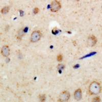 PSMD11 Antibody - Immunohistochemical analysis of PSMD11 staining in human brain formalin fixed paraffin embedded tissue section. The section was pre-treated using heat mediated antigen retrieval with sodium citrate buffer (pH 6.0). The section was then incubated with the antibody at room temperature and detected with HRP and DAB as chromogen. The section was then counterstained with hematoxylin and mounted with DPX.