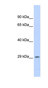 PSME1 antibody LS-B8233 Western blot of Fetal Lung lysate.  This image was taken for the unconjugated form of this product. Other forms have not been tested.
