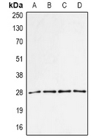 Western blot analysis of PA28 alpha expression in MCF7 (A); BT474 (B); mouse spleen (C); mouse liver (D) whole cell lysates.