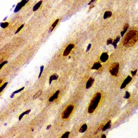 Immunohistochemical analysis of PA28 alpha staining in mouse heart formalin fixed paraffin embedded tissue section. The section was pre-treated using heat mediated antigen retrieval with sodium citrate buffer (pH 6.0). The section was then incubated with the antibody at room temperature and detected using an HRP conjugated compact polymer system. DAB was used as the chromogen. The section was then counterstained with hematoxylin and mounted with DPX.