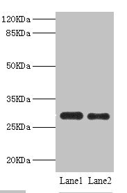 Western blot All Lanes:PSME1 antibody at 0.75ug/ml Lane 1:mouse liver tissue Lane 2:Raji whole cell lysate Secondary Goat polyclonal to rabbit at 1/10000 dilution Predicted band size: 29,27 kDa Observed band size: 29 kDa