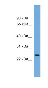 PSME2 antibody LS-C135386 Western blot of Transfected 293T cell lysate.  This image was taken for the unconjugated form of this product. Other forms have not been tested.