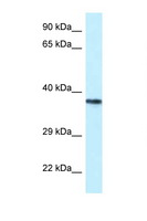 PSTPIP2 Antibody - PSTPIP2 antibody Western blot of Jurkat Cell lysate. Antibody concentration 1 ug/ml.  This image was taken for the unconjugated form of this product. Other forms have not been tested.