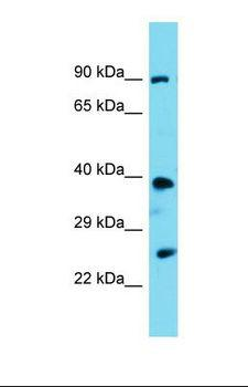 PSTPIP2 Antibody - Western blot of Mouse Kidney. Pstpip2 antibody dilution 1.0 ug/ml.  This image was taken for the unconjugated form of this product. Other forms have not been tested.