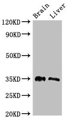 PTF1A Antibody - Western Blot Positive WB detected in: Mouse brain tissue, Rat liver tissue All lanes: PTF1A antibody at 2.7µg/ml Secondary Goat polyclonal to rabbit IgG at 1/50000 dilution Predicted band size: 35 kDa Observed band size: 35 kDa