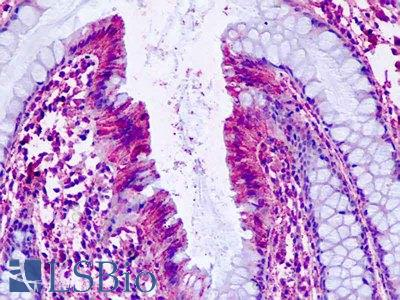 Human, Colon: Formalin-Fixed Paraffin-Embedded (FFPE)