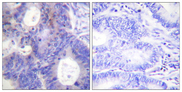 Immunohistochemistry analysis of paraffin-embedded human colon carcinoma, using TEBP (Phospho-Ser113) Antibody. The picture on the right is blocked with the phospho peptide.