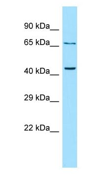 PTHR2 / PTH2R antibody Western Blot of OVCAR-3.  This image was taken for the unconjugated form of this product. Other forms have not been tested.