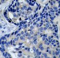 Immunohistochemical analysis of paraffin-embedded human breast carcinoma tissue.