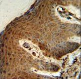 PTMS / Parathymosin Antibody - PTMS Antibody IHC of formalin-fixed and paraffin-embedded human skin followed by peroxidase-conjugated secondary antibody and DAB staining.