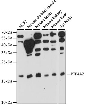 PTP4A2 / PRL-2 Antibody - Western blot analysis of extracts of various cell lines, using PTP4A2 antibody at 1:1000 dilution. The secondary antibody used was an HRP Goat Anti-Rabbit IgG (H+L) at 1:10000 dilution. Lysates were loaded 25ug per lane and 3% nonfat dry milk in TBST was used for blocking. An ECL Kit was used for detection and the exposure time was 30s.