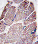 Formalin-fixed and paraffin-embedded human skeletal muscle tissue reacted with PTPD1 antibody , which was peroxidase-conjugated to the secondary antibody, followed by DAB staining. This data demonstrates the use of this antibody for immunohistochemistry; clinical relevance has not been evaluated.