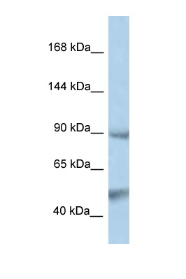 PTPN3 antibody LS-C145346 Western blot of PANC1 Cell lysate. Antibody concentration 1 ug/ml.  This image was taken for the unconjugated form of this product. Other forms have not been tested.