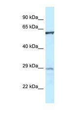 PTPN6 antibody Western blot of 1 Cell lysate. Antibody concentration 1 ug/ml.  This image was taken for the unconjugated form of this product. Other forms have not been tested.