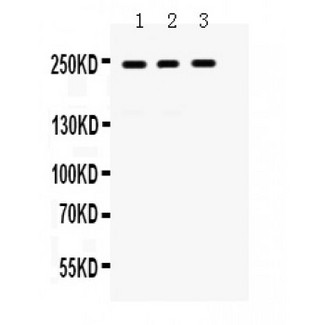 LAR antibody Western blot. All lanes: Anti LAR at 0.5 ug/ml. Lane 1: HELA Whole Cell Lysate at 40 ug. Lane 2: A431 Whole Cell Lysate at 40 ug. Lane 3: A549 Whole Cell Lysate at 40 ug. Predicted band size: 240 kD. Observed band size: 240 kD.