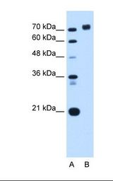 PTPRN / IA-2 Antibody - Lane A: Marker. Lane B: HepG2 cell lysate. Antibody concentration: 0.0625 ug/ml. Gel concentration: 12%.  This image was taken for the unconjugated form of this product. Other forms have not been tested.