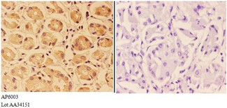 Immunohistochemistry (IHC) analysis of PTPRO antibody in paraffin-embedded human stomach carcinoma tissue at 1:50, showing cytoplasm and membrane staining. Negative control (the right) using PBS instead of primary antibody. Secondary antibody is Goat Anti-Rabbit.