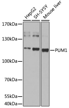 PUM1 Antibody - Western blot analysis of extracts of various cell lines, using pum1 antibody at 1:1000 dilution. The secondary antibody used was an HRP Goat Anti-Rabbit IgG (H+L) at 1:10000 dilution. Lysates were loaded 25ug per lane and 3% nonfat dry milk in TBST was used for blocking. An ECL Kit was used for detection and the exposure time was 30s.