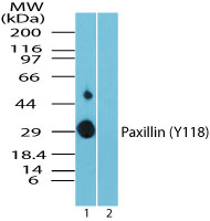 Western blot of phospho Paxillin (Y118) in recombinant fusion protein containing 1) a phosphorylated tyrosine at position 118 and 2) an unphosphorylated tyrosine at position 118, using paxillin phospho antibody at 0.025 ug/ml. Goat anti-rabbit Ig HRP secondary antibody, and PicoTect ECL substrate solution, were used for this test.