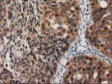 IHC of paraffin-embedded Adenocarcinoma of Human ovary tissue using anti-PYCRL mouse monoclonal antibody.