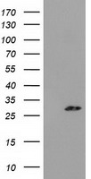 PYCRL Antibody - HEK293T cells were transfected with the pCMV6-ENTRY control (Left lane) or pCMV6-ENTRY PYCRL (Right lane) cDNA for 48 hrs and lysed. Equivalent amounts of cell lysates (5 ug per lane) were separated by SDS-PAGE and immunoblotted with anti-PYCRL.