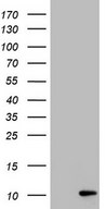 PYDC1 Antibody - HEK293T cells were transfected with the pCMV6-ENTRY control (Left lane) or pCMV6-ENTRY PYDC1 (Right lane) cDNA for 48 hrs and lysed. Equivalent amounts of cell lysates (5 ug per lane) were separated by SDS-PAGE and immunoblotted with anti-PYDC1.