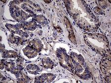 PYDC1 Antibody - IHC of paraffin-embedded Human prostate tissue using anti-PYDC1 mouse monoclonal antibody. (Heat-induced epitope retrieval by 1 mM EDTA in 10mM Tris, pH8.5, 120°C for 3min).