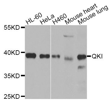 Western blot analysis of extracts of various cell lines.