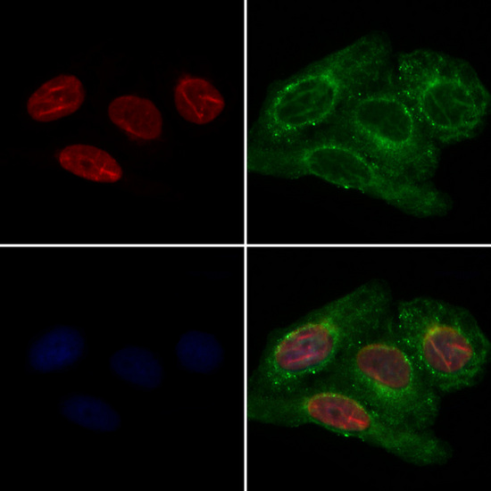 QKI Antibody - Staining HeLa cells by IF/ICC. The samples were fixed with PFA and permeabilized in 0.1% Triton X-100, then blocked in 10% serum for 45 min at 25°C. Samples were then incubated with primary Ab(1:200) and mouse anti-beta tubulin Ab(1:200) for 1 hour at 37°C. An AlexaFluor594 conjugated goat anti-rabbit IgG(H+L) Ab(1:200 Red) and an AlexaFluor488 conjugated goat anti-mouse IgG(H+L) Ab(1:600 Green) were used as the secondary antibod