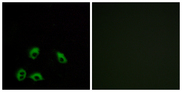Immunofluorescence analysis of MCF7 cells, using GPR103 Antibody. The picture on the right is blocked with the synthesized peptide.