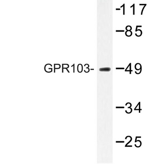 Western blot of GPR103 (I310) pAb in extracts from LOVO cells.