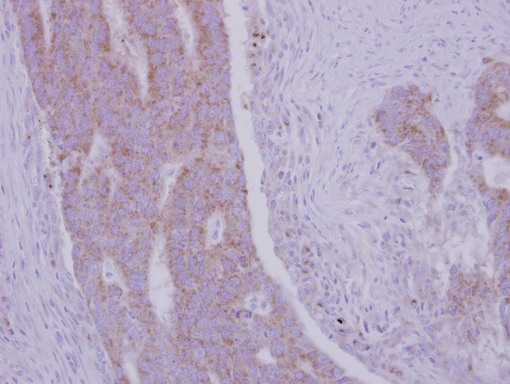 IHC of paraffin-embedded Colon ca, using RRM1 antibody at 1:500 dilution.
