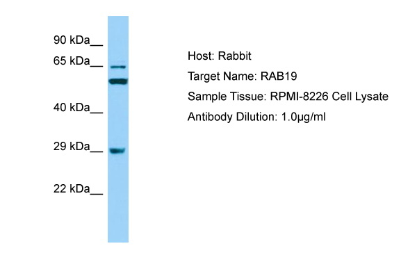 RAB19 Antibody -  This image was taken for the unconjugated form of this product. Other forms have not been tested.