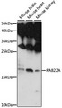 Western blot analysis of extracts of various cell lines, using RAB22A antibody at 1:1000 dilution. The secondary antibody used was an HRP Goat Anti-Rabbit IgG (H+L) at 1:10000 dilution. Lysates were loaded 25ug per lane and 3% nonfat dry milk in TBST was used for blocking. An ECL Kit was used for detection and the exposure time was 90s.
