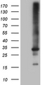 HEK293T cells were transfected with the pCMV6-ENTRY control. (Left lane) or pCMV6-ENTRY RAB23. (Right lane) cDNA for 48 hrs and lysed. Equivalent amounts of cell lysates. (5 ug per lane) were separated by SDS-PAGE and immunoblotted with anti-RAB23. (1:2000)