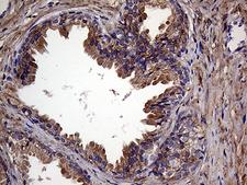 RAB23 Antibody - Immunohistochemical staining of paraffin-embedded Human prostate tissue within the normal limits using anti-RAB23 mouse monoclonal antibody. (Heat-induced epitope retrieval by 1mM EDTA in 10mM Tris buffer. (pH8.5) at 120°C for 3 min. (1:500)