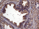 Immunohistochemical staining of paraffin-embedded Human prostate tissue within the normal limits using anti-RAB23 mouse monoclonal antibody. (Heat-induced epitope retrieval by 1mM EDTA in 10mM Tris buffer. (pH8.5) at 120°C for 3 min. (1:500)