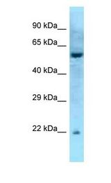 RAB27A / RAB27 antibody Western Blot of Mouse Pancreas . Antibody dilution: 1 ug/ml.  This image was taken for the unconjugated form of this product. Other forms have not been tested.
