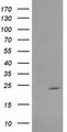 HEK293T cells were transfected with the pCMV6-ENTRY control (Left lane) or pCMV6-ENTRY RAB30 (Right lane) cDNA for 48 hrs and lysed. Equivalent amounts of cell lysates (5 ug per lane) were separated by SDS-PAGE and immunoblotted with anti-RAB30.