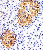 RAB3B Antibody - Antibody staining RAB3B in human pancreas sections by Immunohistochemistry (IHC-P - paraformaldehyde-fixed, paraffin-embedded sections). Tissue was fixed with formaldehyde and blocked with 3% BSA for 0. 5 hour at room temperature; antigen retrieval was by heat mediation with a citrate buffer (pH 6). Samples were incubated with primary antibody (1:25) for 1 hours at 37°C. A undiluted biotinylated goat polyvalent antibody was used as the secondary antibody.