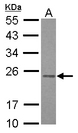 RAB3B Antibody - Sample (30 ug of whole cell lysate) A: HepG2 12% SDS PAGE RAB3B antibody diluted at 1:1000