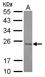 Sample (30 ug of whole cell lysate) A: HepG2 12% SDS PAGE RAB3B antibody diluted at 1:1000