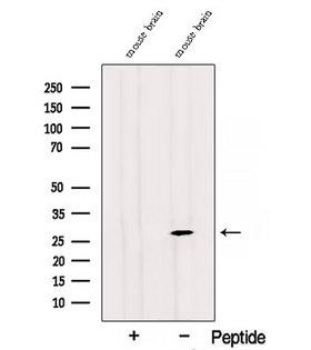 RAB3C Antibody - Western blot analysis of extracts of mouse brain tissue using RAB3C antibody. The lane on the left was treated with blocking peptide.