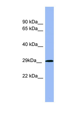 RAB5A / RAB5 antibody LS-C107583 Western blot of Fetal Muscle lysate.  This image was taken for the unconjugated form of this product. Other forms have not been tested.